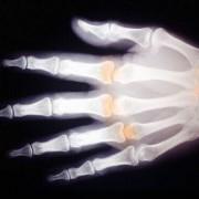 Röntgenaufnahme einer Hand (um 1900)